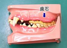 歯石が付いた歯の模型